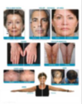 DermoZen,corriente galvánica facial y corporal en Málaga nu skin age loc