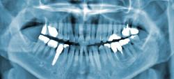 xray-dental-implants