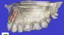 La tecnología 3D aplicada a los implantes dentales