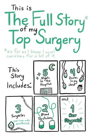 My Top Surgery