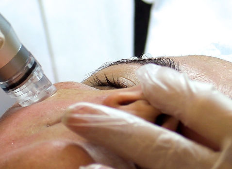 tratamiento facial.jpg