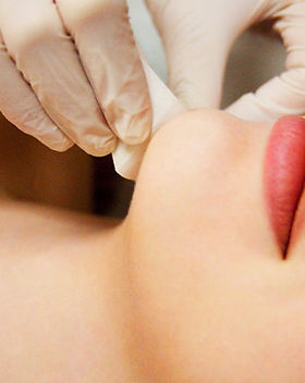 Wax_Facial_waxing_Chin_hair_removal__NYC