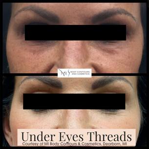 Under Eye Threads.jpg