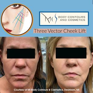Three Vector Cheek Lift.jpg