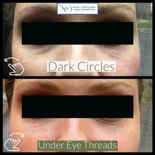 Under Eye Threads 2.jpg