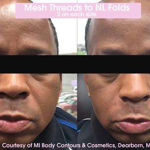 Mesh NL Folds.jpg
