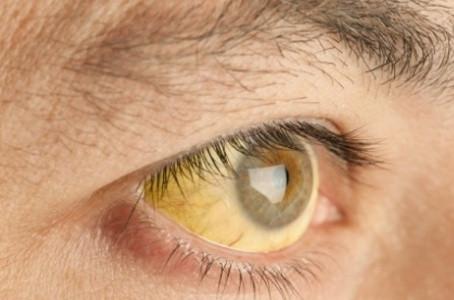Holanda registra caso de febre amarela contraída no Brasil