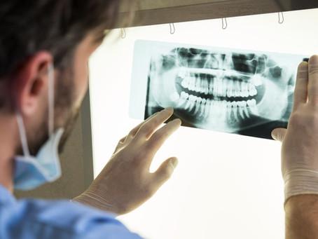 O que você deve saber sobre câncer bucal