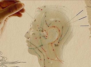 Akupunktur auf Meridian