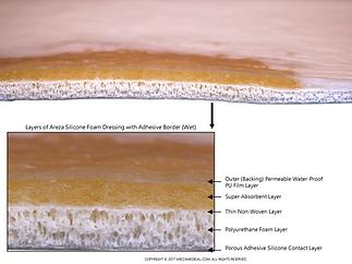 silicone-foam-dressing-adhesive-border-a