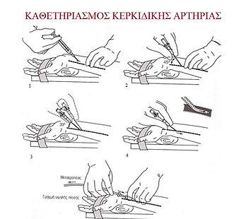 Στεφανιογραφία από το χέρι - Coronary angiography