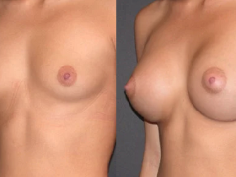 NIO  Breast after.png