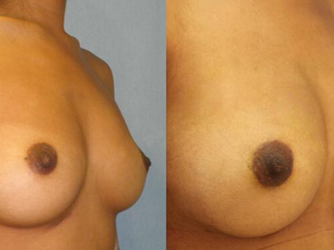 fat transfer Breast1.png