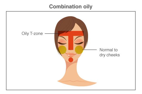 combination oily skin