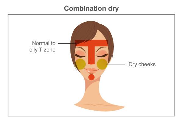 combination dry skin