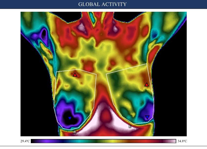 Fibrocystic activity 1 a