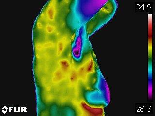 Fibrocystic activity 1b