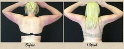 1 week arms