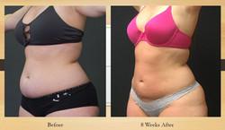 8 week abdomen