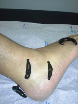 Swelling ankle and feet 2