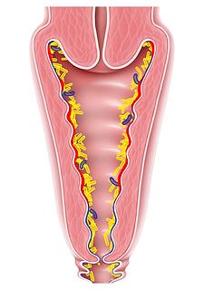 Schéma d'une flore vaginale déséquilibrée
