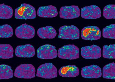 Why is Quantitative Imaging Important for NAFLD/NASH?