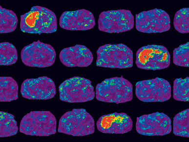 Why is Quantitative Imaging Important for NAFLD/NASH?