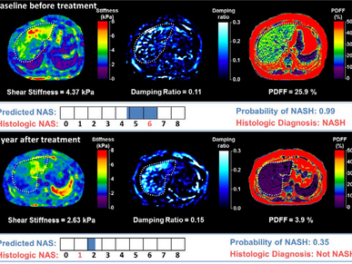 Multiparametric 3D MRE Improves Detection of NASH