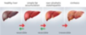 Liver Disease Progression