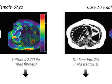 Fact Sheet: Liver Fat Does Not Affect Liver Stiffness Measured with MR Elastography