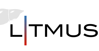 Resoundant Joins LITMUS
