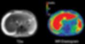 Liver elastography MRE fibrosis