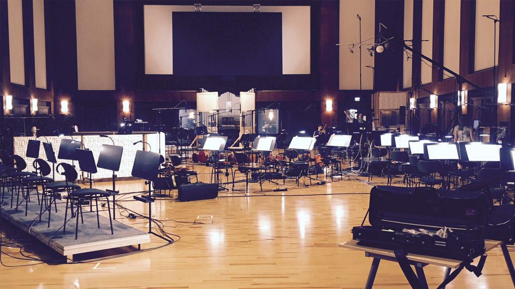Synchron Stage Setup