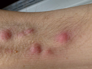 Hijama Wet Cupping for Hidradenitis Suppuritiva.