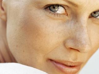6 Tips for Preventing Sun Spots