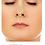 Thumbnail: NOSE lifting nasal Volumen y contorno
