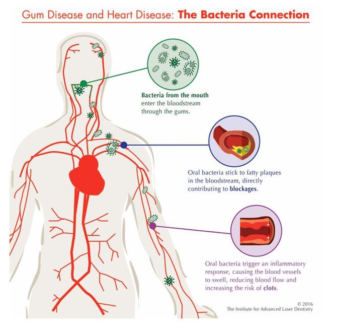 Link Between Gum Disease and Heart Disease