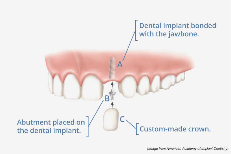 image from American Academy of Implant Dentistr