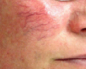 spider-veins-cheek.jpg