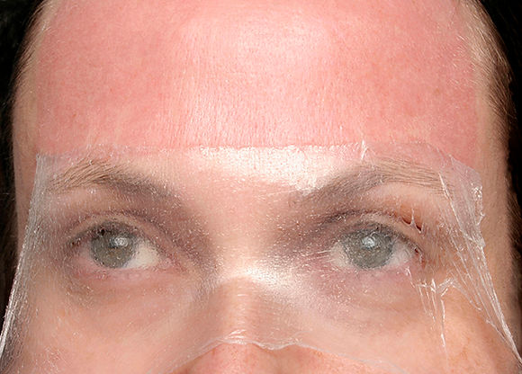 peel (cosmetic series) - a veil made of skin, emulating the way the forhead skin is peeled back during facelift surgery