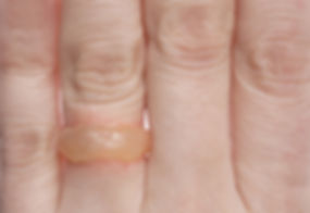 blister ring - an ephemeral ring made from a blister on the wedding finger