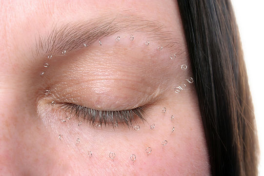 cosmetic - a piece using pins to highlight the way the face is marked up prior to eyelid or eye tuck cosmetic surgery