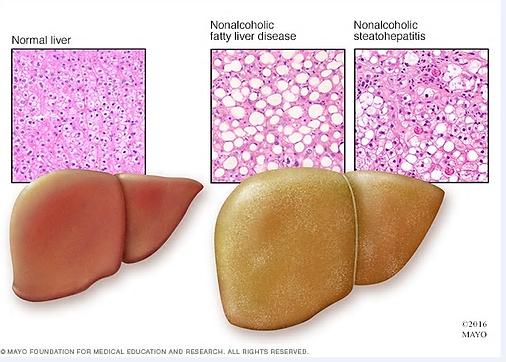 Normal Liver vs. Fatty Liver.png