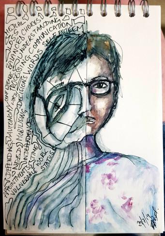 Hemiplegic Migraine Episode