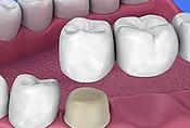 Dental Grants - Crowns