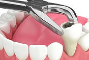 Dental Grants - Tooth Extraction
