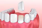 Dental Grants - Veneers