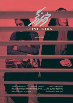 Contusion