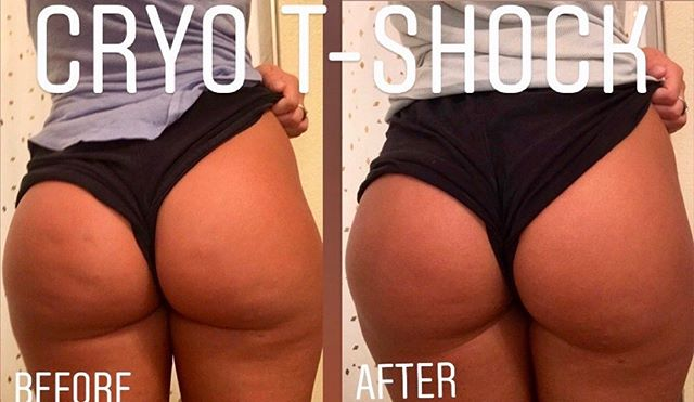 More awesome results from the Cryo T-Sho