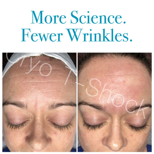 BeforeAfter_forehead2 wrinkles loss